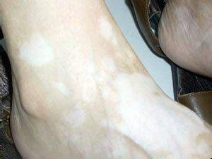 白癜风患者经常熬夜有哪些危害